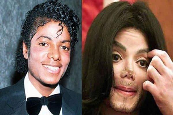 жертвы пластической хирургии Майкла Джексона