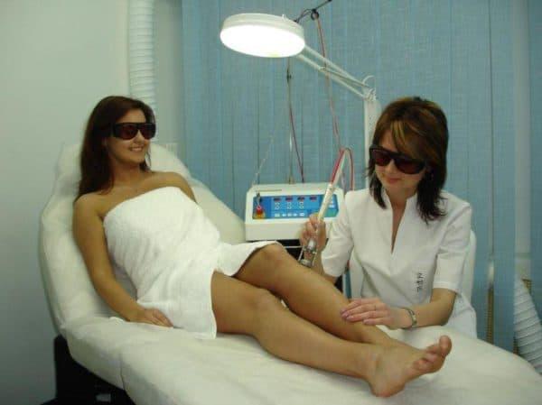 лазерная эпиляция для женщин