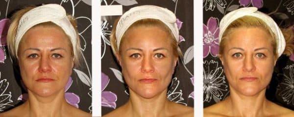 безинъекционная мезотерапия отзывы фото до и после