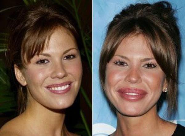 жертвы пластической хирургии фото до и после