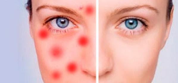 Гнойные прыщи на лице – причины и лечение высыпания у женщин