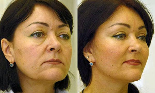 rf лифтинг лица фото до и после