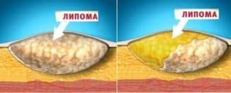 жировики на теле почему возникают и быстрое избавление