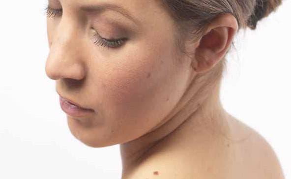 Почему появляются папилломы на теле