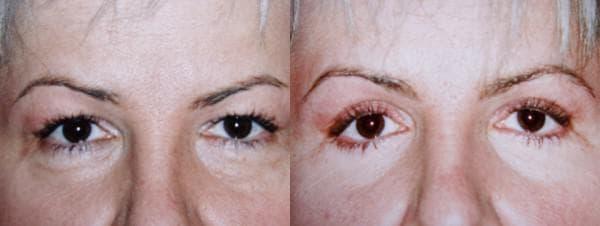 трансконъюктивальная блефаропластика фото до и после