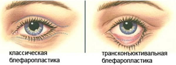 трансконъюктивальная блефаропластика век глаз