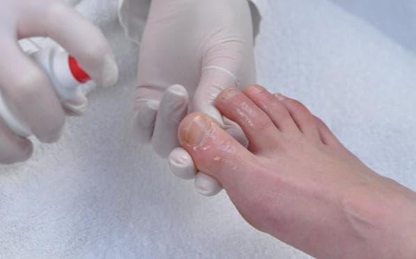 У кого лечить грибок ногтей
