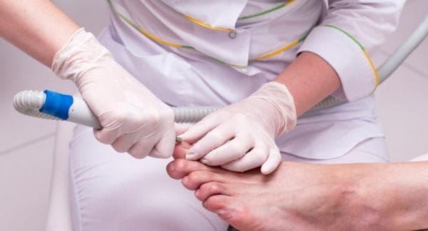 Толстые ногти на ногах лечение