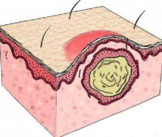 удаление молочной кисты на лице
