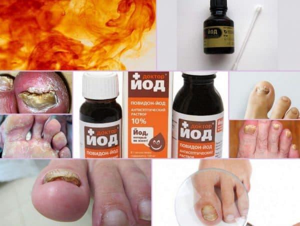 Йод от грибка ногтей. ТОП 5 средств для лечения грибка ногтей на ногах йодом