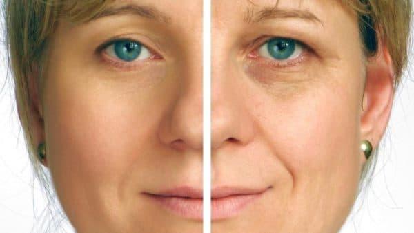 полисорб маска для лица от морщин