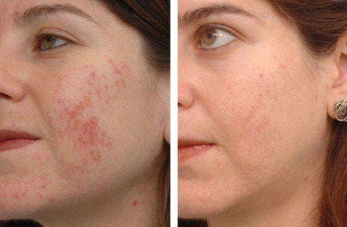 эффект ультразвукового пилинга до и после
