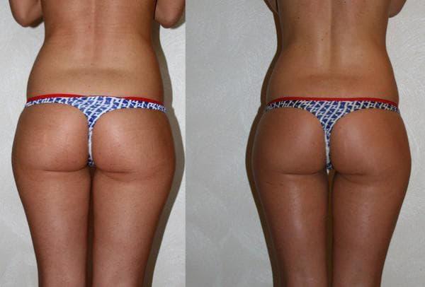 медово горчичное обертывание фото до и после