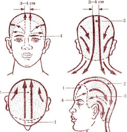 точки при мигрени