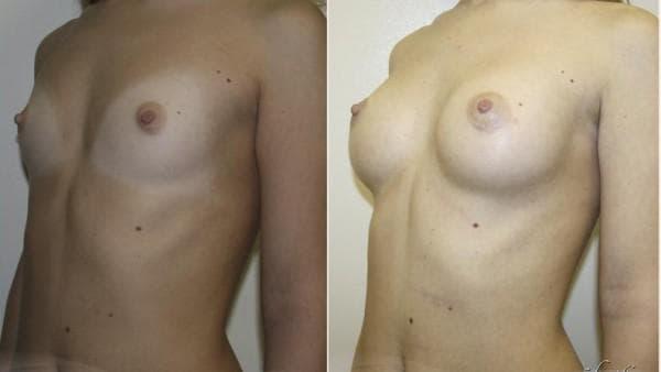 пластическая операция по увеличению молочных желез
