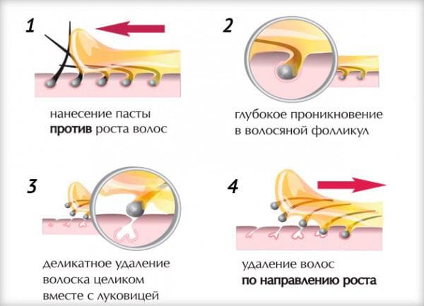 процедура шугаринга