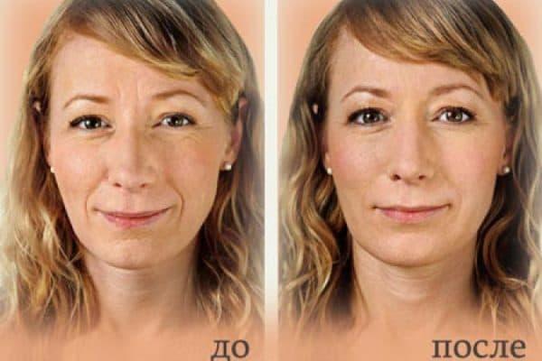 биоревитализация гиалуроновой кислотой фото до и после