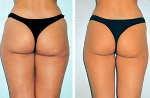 лимфодренажный массаж отзывы фото до и после