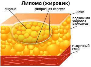 удаление жировиков на лице лазером