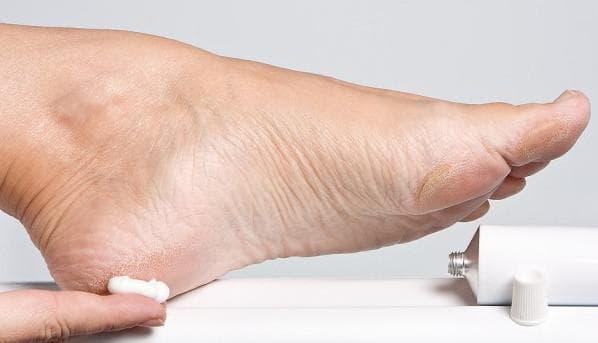 химическое удаление бородавок на ногах