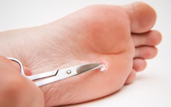 как избавиться от бородавки на ноге