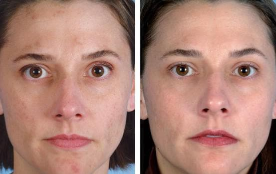 уз чистка лица до и после