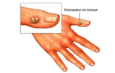 как выглядит бородавка на пальцах рук