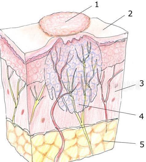корень бородавки