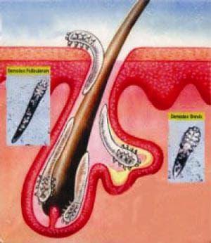 демодекс-клещи, вызывают прыщи на коже тела