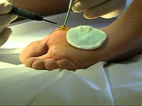 электрокоагуляция бородавок на ногах