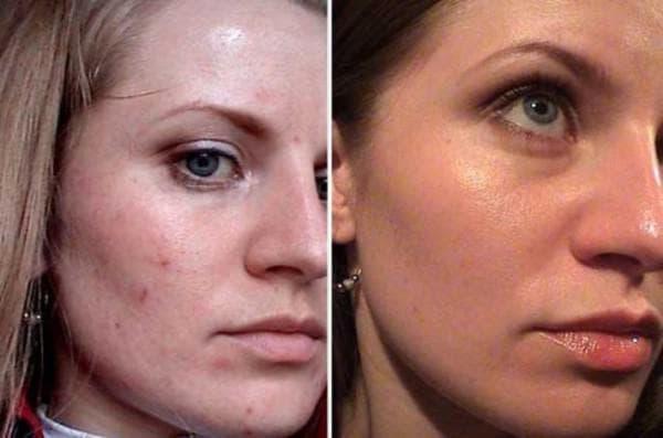 чистка лица у косметолога до и после