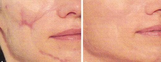иссечение рубцов фото до и после