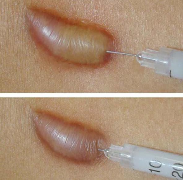 С помощью кортикостероидов, которые вводятся в ткань шрама