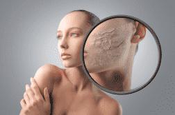 средство от шелушения кожи лица