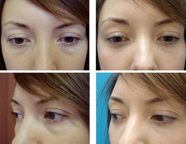 трансконъюктивальная блефаропластика глаз