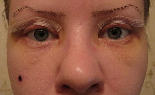 блефаропластика верхних век фото сразу после операции