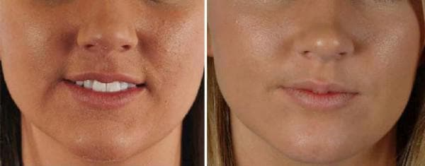 алмазная шлифовка лица фото до и после