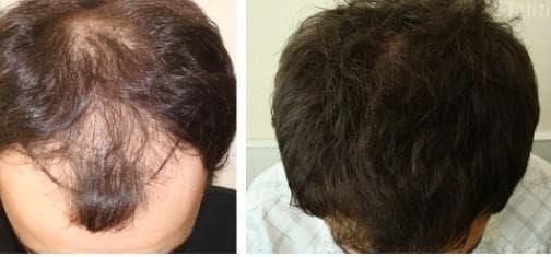 трансплантация от волос