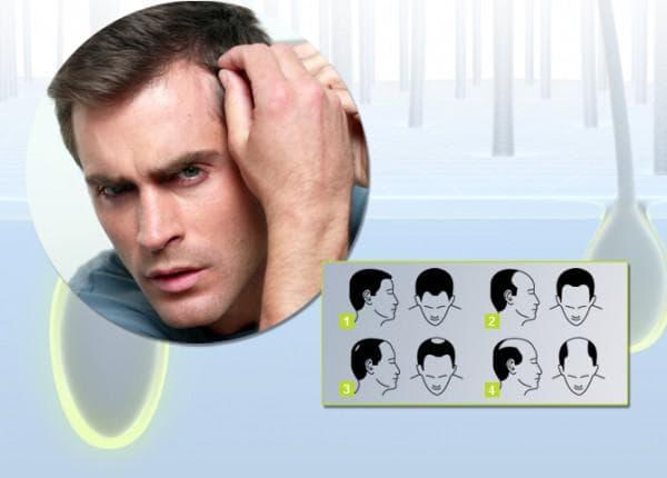 выпадают волосы причины