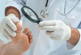лечение грибка ногтя запущенная форма перекисью водорода