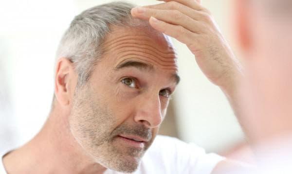 плохое питание и выпадение волос