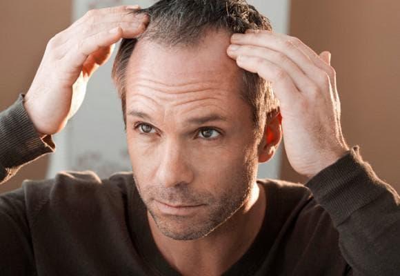 выпадение волос после какой то травмы