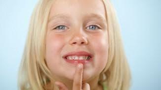 обветрились губы у детей