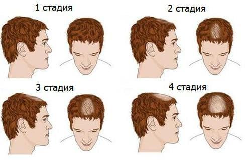 гормоны мужчин и выпадение волос