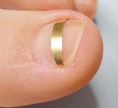 пластинка для ногтя пальца ноги