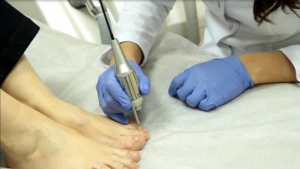 лазерная коррекция ногтей на ногах
