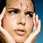 Как избавиться от просянки на лице у детей и взрослых
