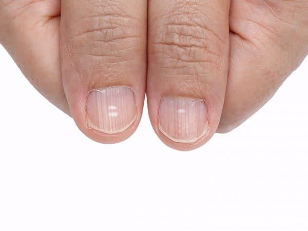 авитаминоз ногтей рук