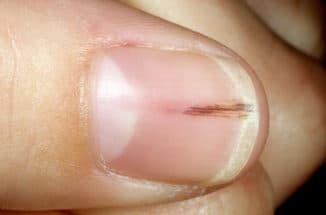 травмирование пластины ногтя руки