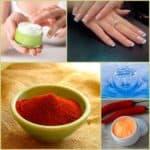 Применение йода для укрепления ногтей